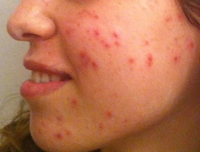 Detect red pimples on face using openCV [closed] - OpenCV Q&A Forum