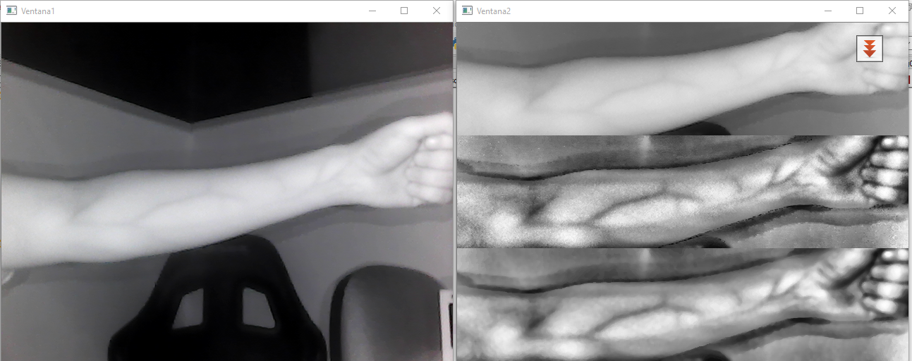 Background subtraction for vein detection - OpenCV Q&A Forum